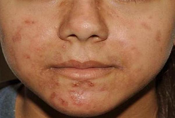 بررسی بیماری های شایع پوستی، جوش جوانی نیاز به درمان دارد