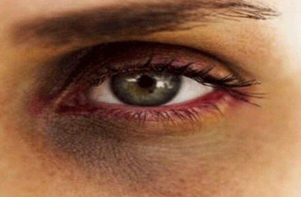 سیاهی دور چشم را با این روش ها درمان کنید