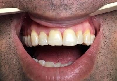لمینت دندان، قیمت سال 99 و جدیدترین انواع آن